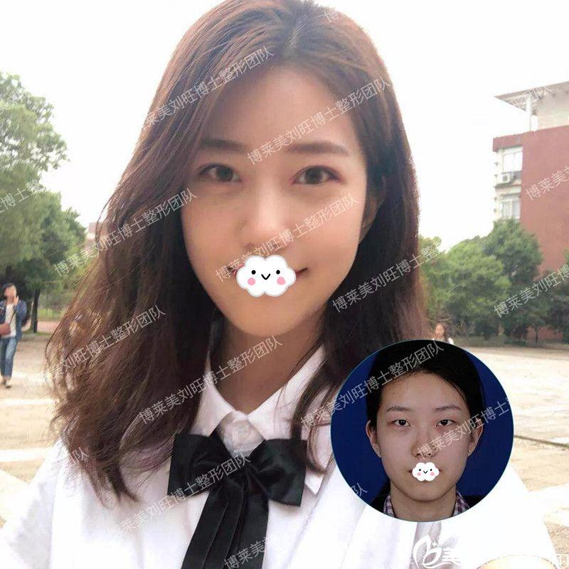 只不过换了发型又到天津博莱美刘旺处割双眼皮同学就说我像换了张脸