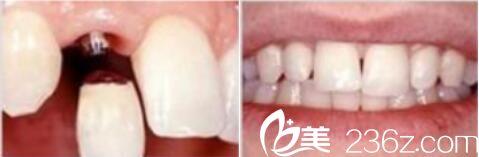 这里有一份上海华美整形口腔科全新价格表推荐专家,张群牙齿矫正真人案例对比
