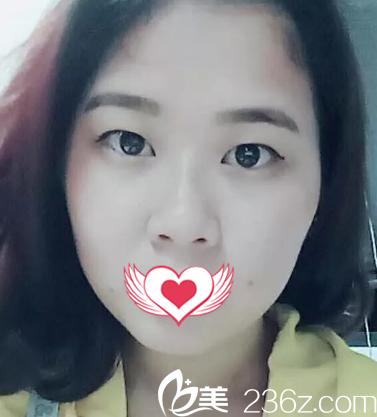 廊坊韩誉国都医疗美容诊所张媛媛术前照片1