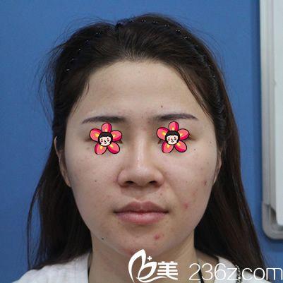 去咨询过杭州瑞丽和格莱美,看了案例效果和价格后在格莱美做了自体脂肪全脸填充