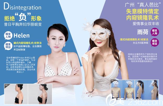 广州海峡整形医院谭新东内窥镜隆胸案例图片