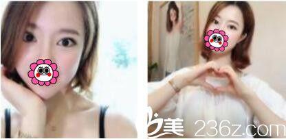 一个月前去韩国姜元景做了双眼皮,没想到姜元景技术真的不是吹的恢复的特别自然