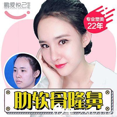 深圳鹏爱悦己整容医院吴胜做的肋软骨隆鼻案例图