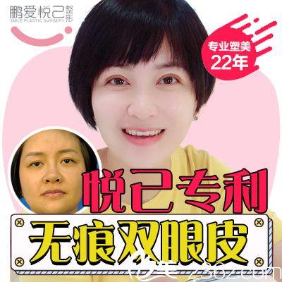 深圳悦己医美吴胜做的切开双眼皮案例图