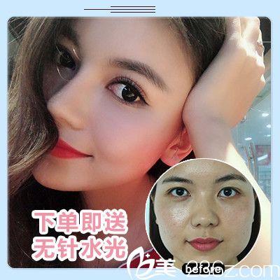 深圳鹏爱悦己吴胜做的假体隆鼻案例图