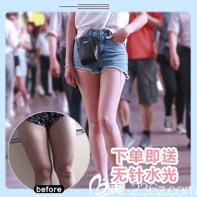深圳悦己医美张珉院长做的大腿吸脂案例图