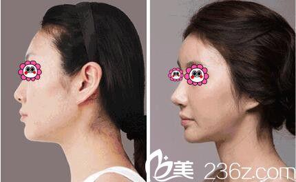 王明新鼻部整形真人案例分享