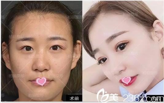 公布北京柏丽李劲良于波鼻综合隆鼻修复双眼皮真人案例和新鲜价格表