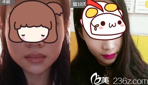 芜湖昊阳医疗美容好不好?瘦脸针案例来验证