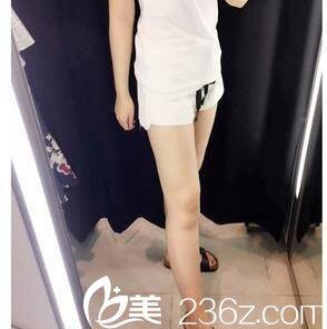 分享我2个月前找韩国美人整形医院朴元奎做的吸脂瘦大腿恢复效果图