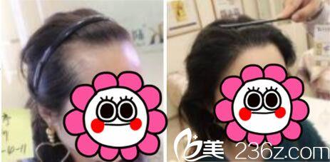 得到一份上海美莱口腔科和激光美容,植发中心全新价格表,袁玉坤发际线种植真人案例对比效果图