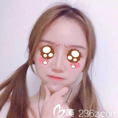 来一组妹子在江西广济医院做自体脂肪全脸填充整形恢复图