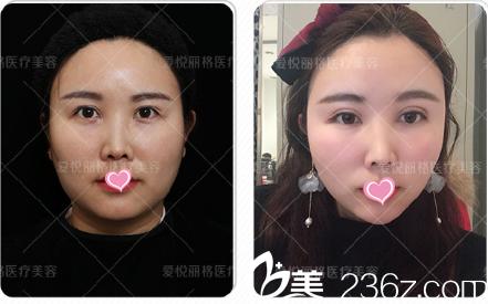 北京爱悦丽格马力双眼皮整形修复祛眼袋案例大集结你来评效果
