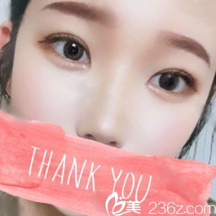 亲自体验了才知道绍兴艺美方伦磊做双眼皮和隆鼻效果都不错呢