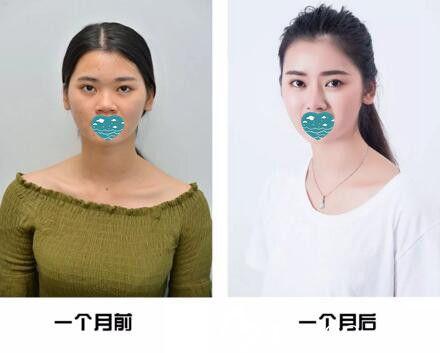 看我在三亚红妆尚医学美容做的自体软骨隆鼻1个月恢复效果怎么样