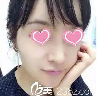 感受郑州艾伯丽整形实力专家刘欣华的注射隆鼻技术 原来想变美鼻只需打一针