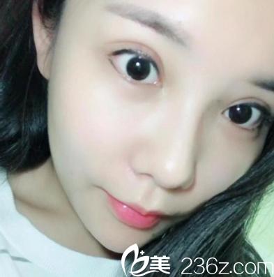 趁着休假到深圳兰乔整形医院找陈邦胤同时做了双眼皮修复隆鼻和自体脂肪填充