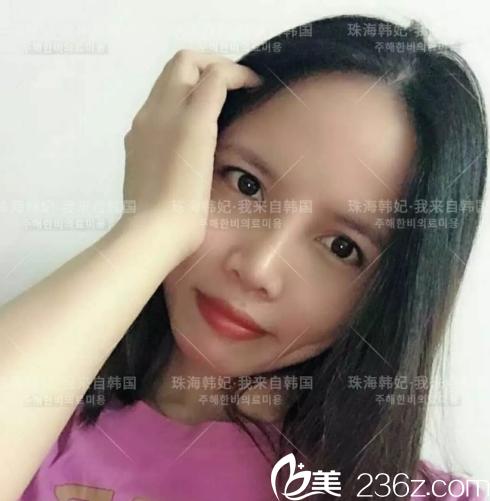 珠海韩妃整形医院小护士亲身体验申国铉院长鼻综合隆鼻手术,前后变化好惊人