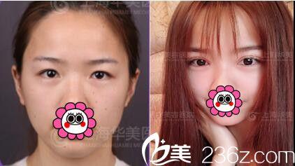关于上海华美双眼皮手法和价格感想,许再荣、杨亚益、佀同帅真人案例对比