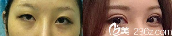 方暖硕双眼皮全切手术代表案例
