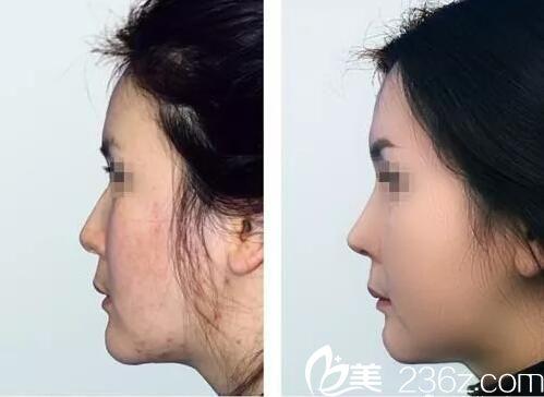 百嘉丽鼻部整形真人案例对比