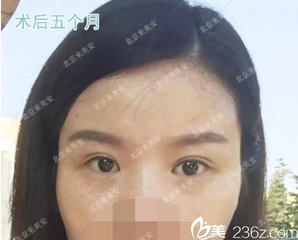 双眼皮肉条状两次修复失败后在北京来美安找王振军做了双眼皮修复