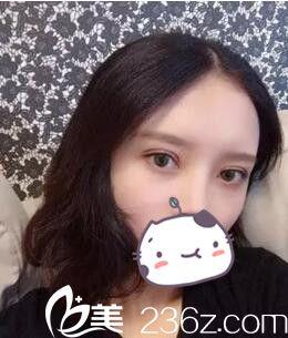 有幸让郑州华山专家陈秀娟给我割双眼皮 看看我术后是不是闭眼无痕