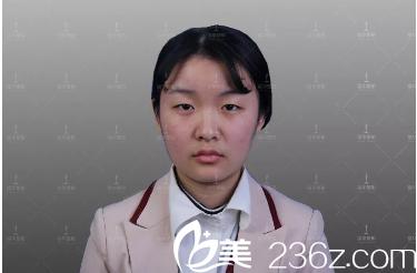 深圳福华医疗美容医院王天成 术前照片1