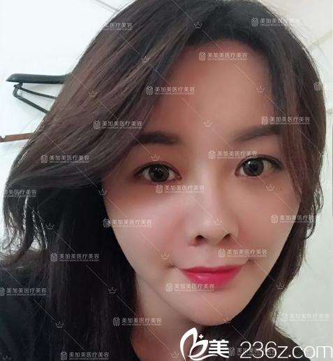 深圳美加美医疗美容整形医院陈群术后照片1