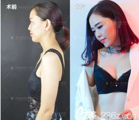深圳雅涵整形医院高山教授隆胸案例对比图
