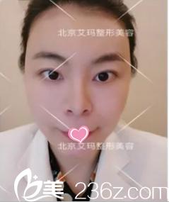 闺蜜在北京艾玛做了胸部奥美定取出推荐我找韦元强做面部脂肪填充