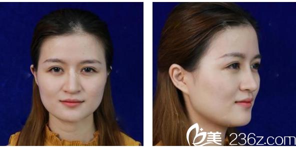 广州韩妃医学整形美容医院陈坦术前照片1