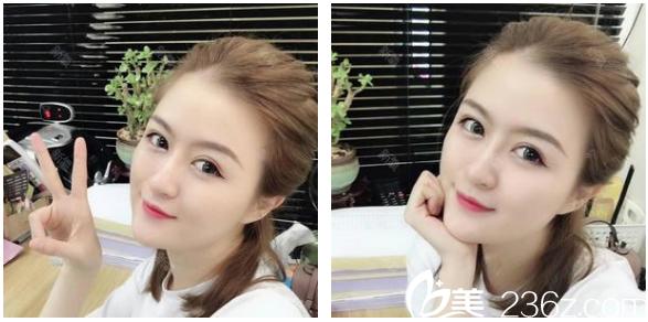 广州韩妃陈坦线雕+玻尿酸填充+瘦脸针案例
