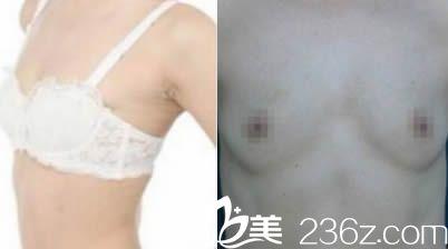 韩国一美知整形外科医院李洪基术前照片1