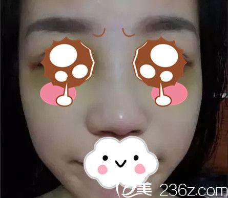 黄万宇医生隆鼻手术案例