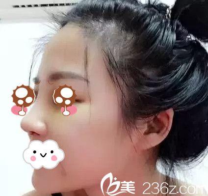 抚州韩尚整形医院隆鼻手术案例分享