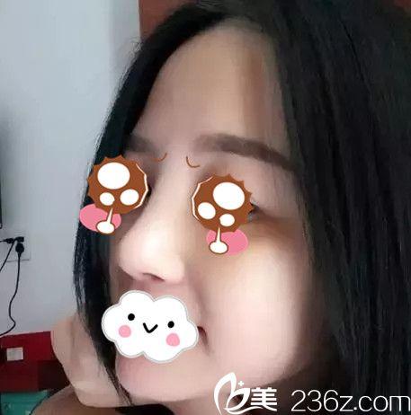 抚州韩尚医疗美容门诊部黄万宇术后照片1