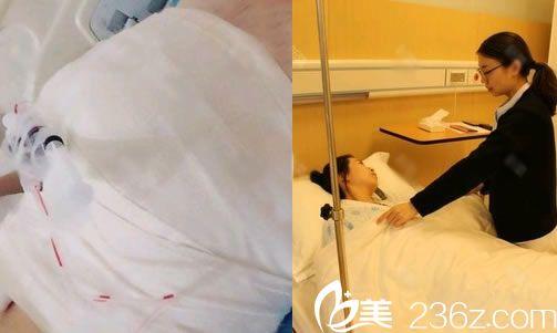 杭州群英整形刚做完隆胸照片