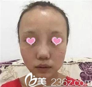 南昌爱思特医疗美容医院李如杰术前照片1