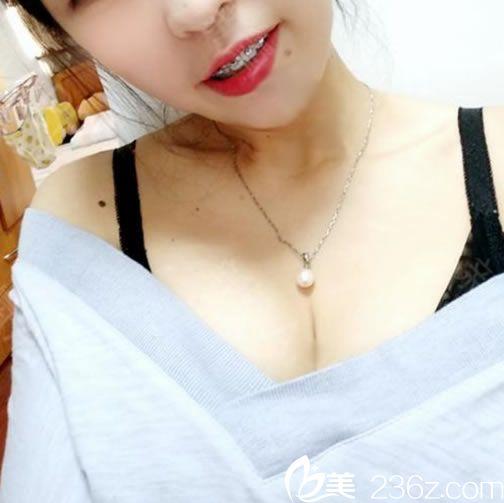 看到浙医二院整形科胡学庆到杭州群英来坐诊了,当即预约胡学庆做了假体隆胸
