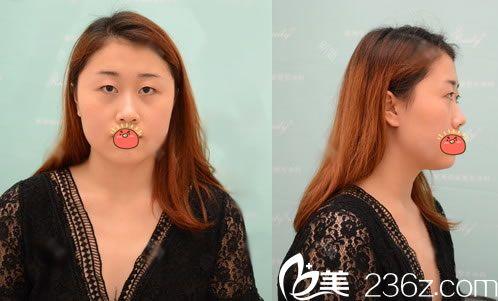 杭州瑞丽医疗美容医院术前照片1