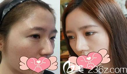 太原时光隆鼻术前术后效果对比图