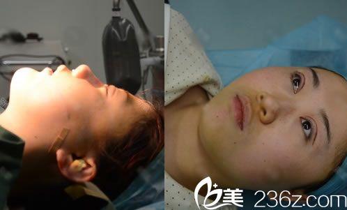 杭州瑞丽王俞明做双眼皮隆鼻过程