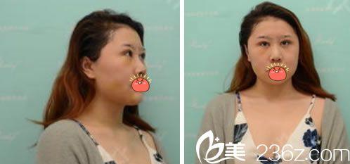 在杭州瑞丽做眼鼻脂肪填充4天效果