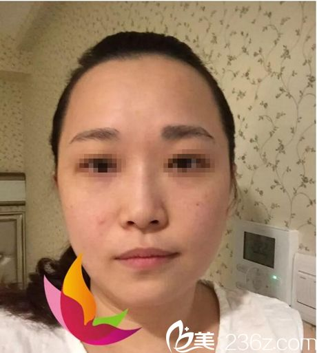 武汉慕尔美医疗美容诊所郑国兰术前照片1