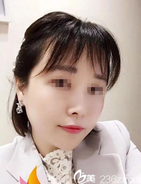 武汉慕尔美医疗美容诊所郑国兰术后照片1