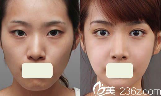 北京美莱整形医院双眼皮+面部轮廓案例图
