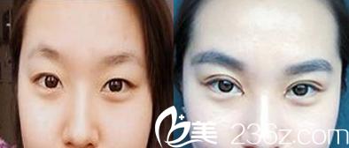 聊城韩美双眼皮案例效果对比图