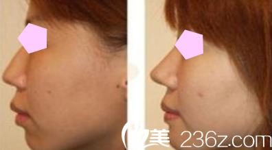聊城韩美整形隆鼻案例效果图