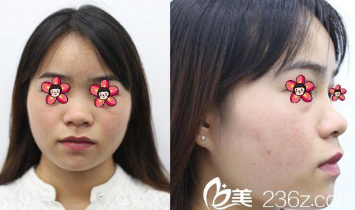 杭州静港医疗美容门诊部程卫民术前照片1